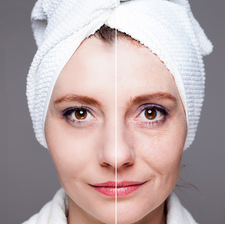 Skin rejuvenation Tightening