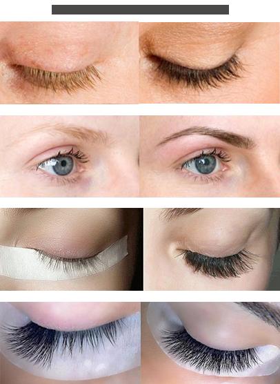 Eyebrow & Eyelashes Treatments